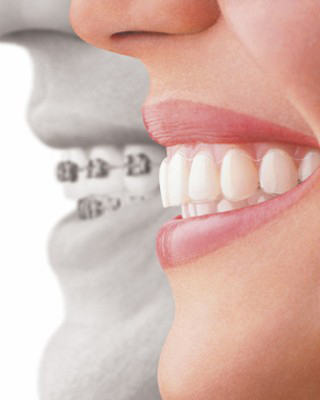 Invisalign braces comparison with metal braces