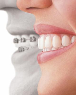 Invisalign braces comparison with metal braces